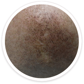 post-inflammatory-pigmentation-Shakura-treatment-Singapore