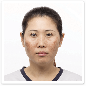Shakura Singapore melasma and freckles before treatment