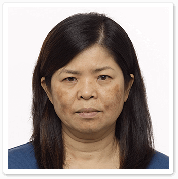 melasma-before-Shakura-Pigmentation-treatment
