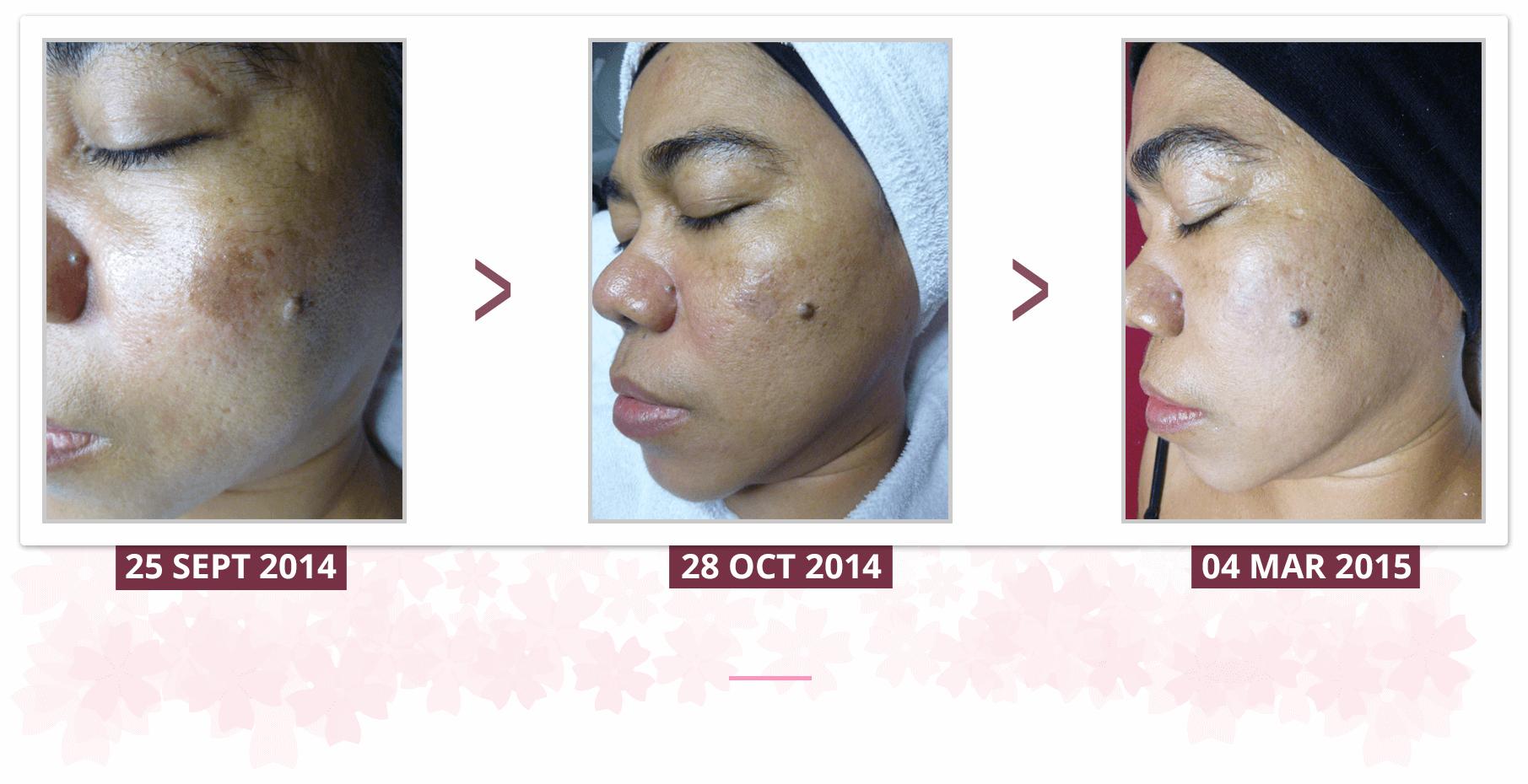 Shakura Singapore post inflammatory hyperpigmentation treatment and results