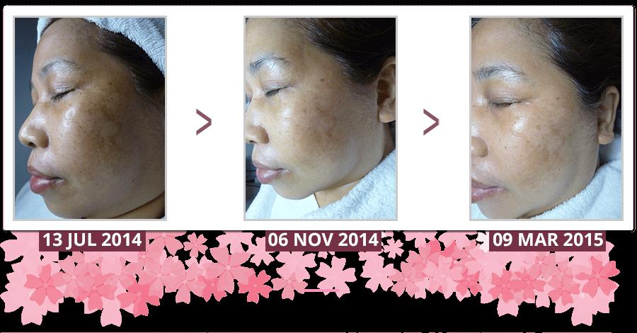 freckles-uneven-skin-tone-testimonial-Shakura-Singapore