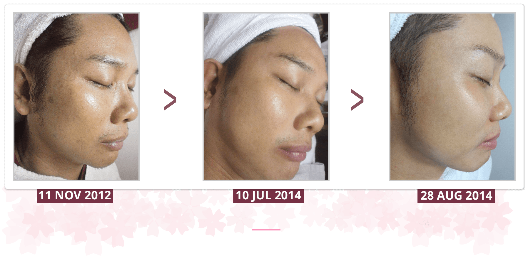 Shakura Singapore freckles and sun burn pigmentation treatment and results