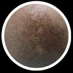 post-inflammatory hyperpigmentation- shakura