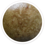 melasma (chloasma)- shakura pigmentation beauty singapore