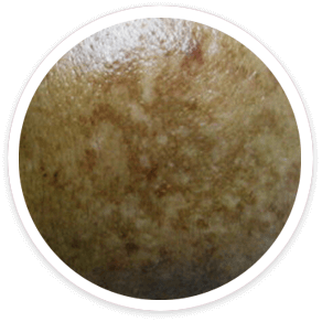 Shakura Singapore melasma or chloasma pigmentation type