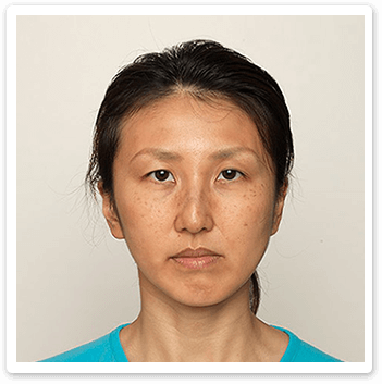 facial-spots-before-Shakura-pigmentation-treatment