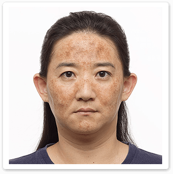 Shakura Singapore before treatment of melasma and freckles