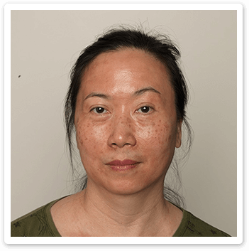 Shakura Singapore before treatment of age spots, uneven skin tone and redness