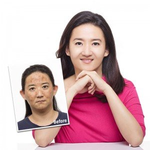 darks-spots-testimonial-Shakura-pigmentation-treatment-Singapore