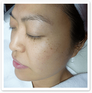 Shakura Singapore before treatment of freckles, dry and sensitive skin