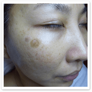 Shakura Singapore before treatment of age spots