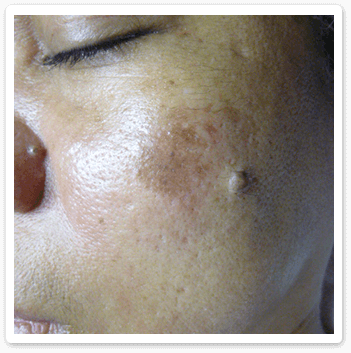 Shakura Singapore before treatment of post inflammatory hyperpigmentation and melasma