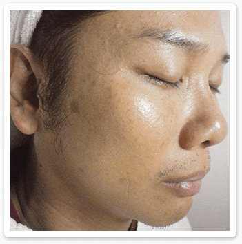 freckles-sun-burn-before-Shakura-pigmentation-treatment