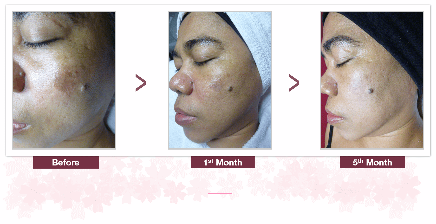Shakura Singapore post inflammatory hyperpigmentation treatment and results