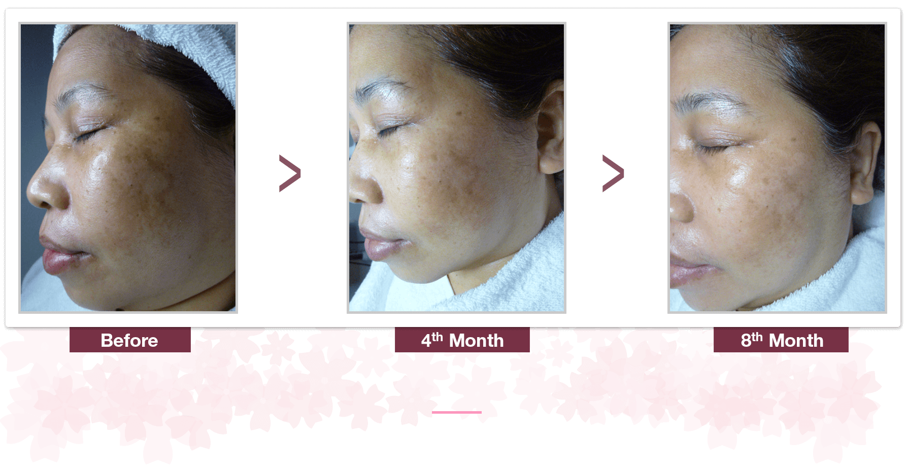 Shakura Singapore freckles and melasma treatment and results