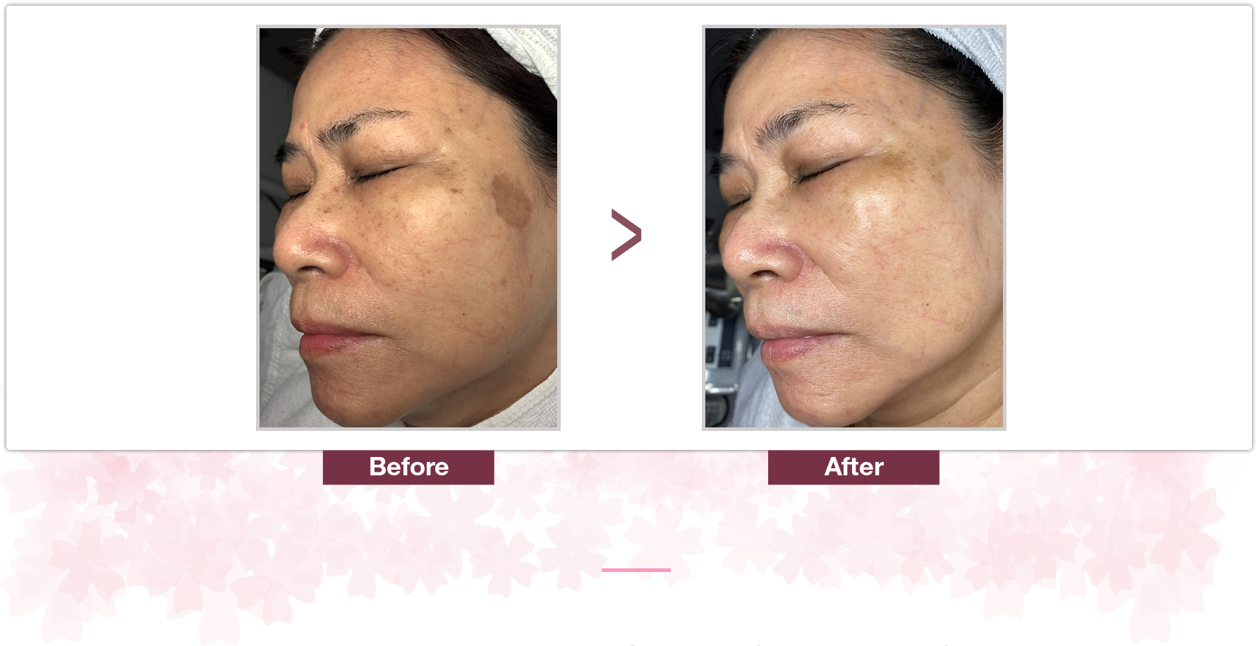 Shakura Singapore acnes marks treatment and visible results